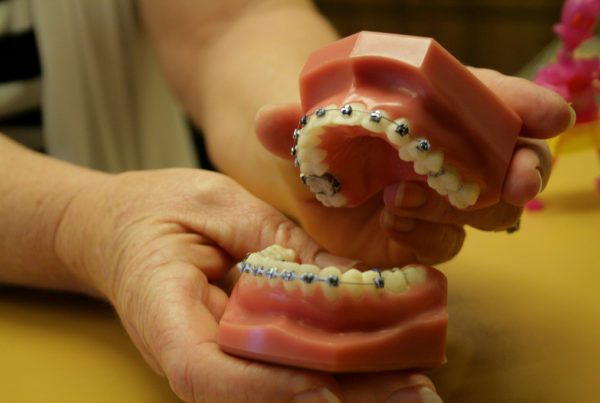 When It Comes To DIY Braces, Orthodontists Say Don't Try This At Home